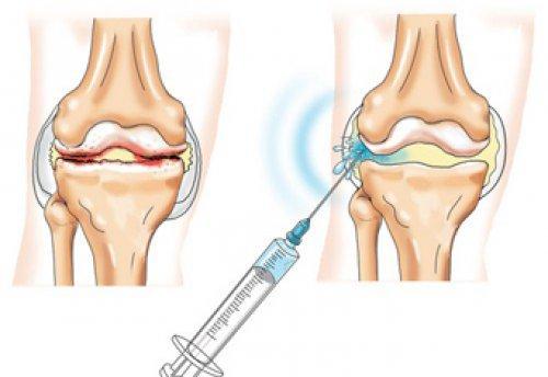 Рисунок. Препараты для лечения коленных суставов. Уколы гиалуроновой кислоты в сустав