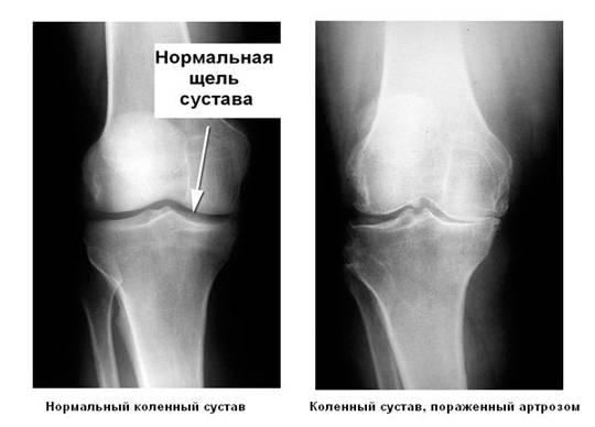 Рисунок. Ренгеноснимок. Боли при артрозе коленного сустава вызваны изменением суставной щели.