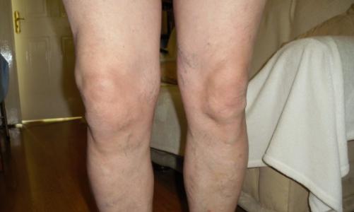 Больничный лист при гонартрозе коленного сустава лечение суставов капустным рассолом
