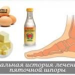 Рецепты лечения шпор